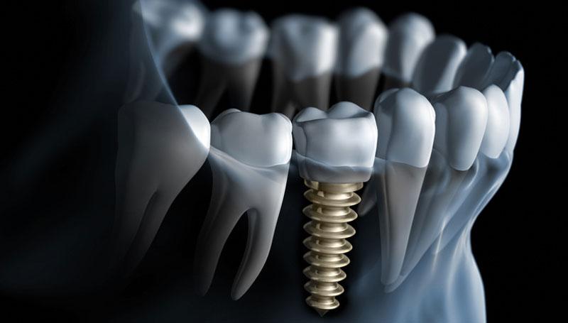 Preskakanje navoja implanta u kosti ponedeljak