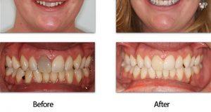 Bijeljenje mrtvih zuba