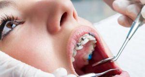 Kada je idealno vrijeme za ortodonciju?