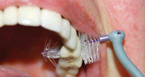 Značaj oralne higijene protetskih nadoknada