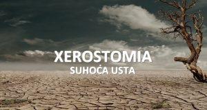 Kserostomija (xerostomia)