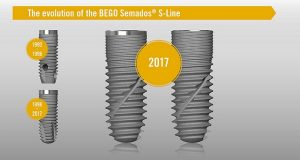 BEGO Semados® SC/SCX-Implants