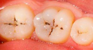 Gangrena zuba