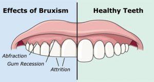 Kako spriječiti škripanje zubima u snu?