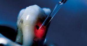 Laser za dijagnostiku karijesa