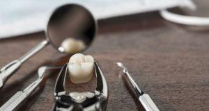 Kada zub mora da se vadi hirurškim putem?