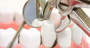 Uputstva poslije vađenja zuba