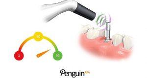 PenguinRFA – uređaj za mjerenje stabilnosti implantata i abutmenta