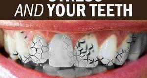Kako stres utiče na vaše zube?