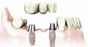 Povezanost zuba i implantata kao nosača fiksnog rada