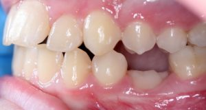 Dijagnostika ankiloze zuba