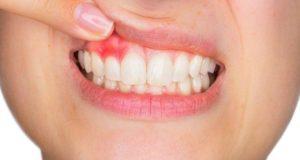 Iznenadna zubobolja