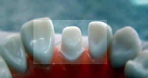 Mehaničko, toplinsko i hemijsko oštećenje zuba prilikom brušenja