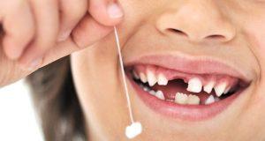 Resorpcija korijenova mliječnih zuba