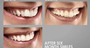 Six Month Smiles