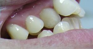 Kompresija zuba