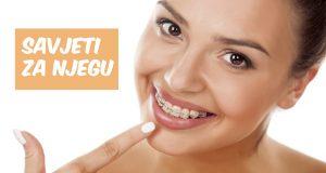 Kako prati zube sa fiksnim aparatićem? (Savjeti)