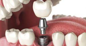Zubni implantati