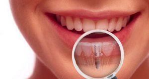 Alergijska reakcija na implantate