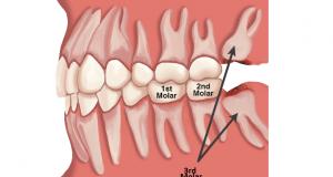 Molari – koji su to zubi i koja je njihova funkcija?