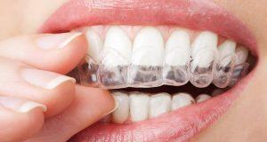 Kućno izbjeljivanje zuba