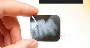 Analogna i digitalna stomatološka rendgenska snimka