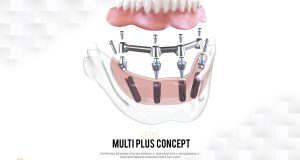 "Tečaj Multi Plus Concept ""Total Rehabilitation over 4 Implants in Patients with Posterior Sector Atrophic Jaws – MR Dental d.o.o., Bihać, 8.6.2019. godine"