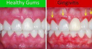 Upala desni – gingivitis