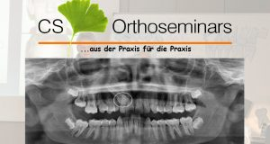 Modul 6 CS Orthoseminarsa – Impaktirani zubi u ortodonciji