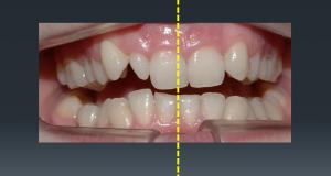Modul 8 CS Orthoseminarsa – Asimetrije