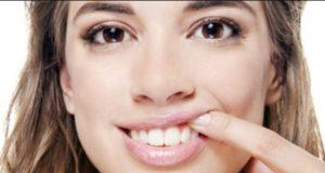 Vaše desni – ulazna vrata do oralnog zdravlja