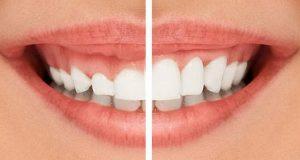 Koja je razlika između gingivektomije i gingivoplastike?