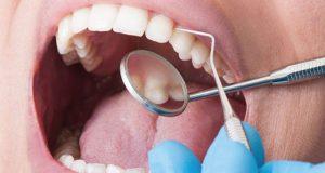 Simptomi zubnog apscesa