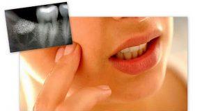 Tegobe nakon vađenja zuba