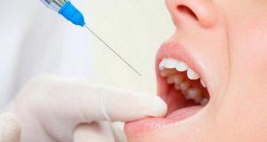 Faktori koji utiču na djelovanje lokalne anestezije