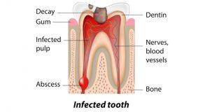 Apsces ili granulom zuba
