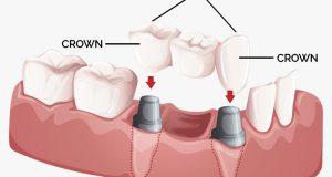 Materijali za izradu zubnog mosta