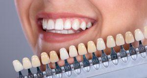 Izbor boje umjetnih zuba