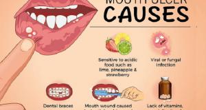 Izrasline i rane u ustima