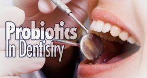 Probiotici i dentalni karijes