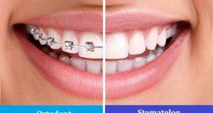 Kada trebamo ići kod stomatologa, a kada kod ortodonta?