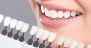 Mogu li umjetni zubi izgledati prirodno?