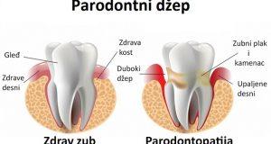 Parodontni džepovi – kako spriječiti njihov nastanak?