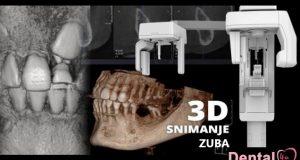 Digitalne rendgenske snimke zuba i vilice