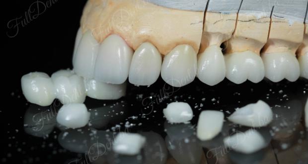 Keramički sistemi u zubotehničkom laboratoriju Full Dent