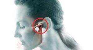 Poremećaj temporomandibularnog zgloba (TMZ)