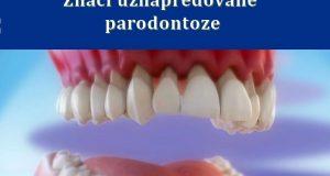 Znaci uznapredovane parodontoze