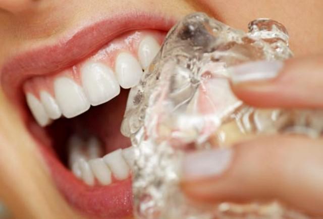 10 najgorih navika za zube