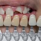 Usklađivanje boje zuba u okviru fiksnoprotetske terapije