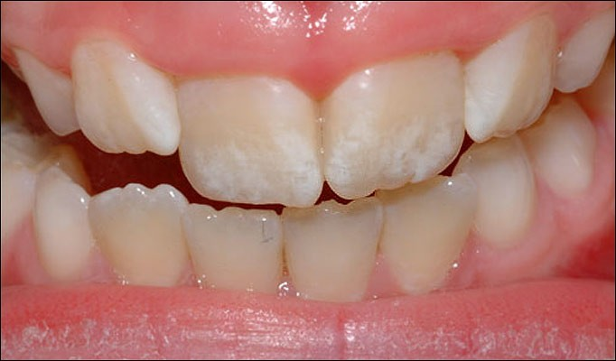 Fluoroza zuba